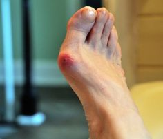 how to get rid of bunions on outside of feet