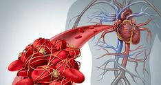 We've all seen a blood clot in the form of a scab and a bruise. Also, the blood clots may appear when they are not supposed to, causing strokes, heart attack, or other serious medical issue. See these 6 signs which show that you may have a blood clot: Function Of Blood, Transient Ischemic Attack, Meta Analysis, Primary Care Physician, Johnson And Johnson, Warning Signs, Medical Center, Health Advice, Rooster
