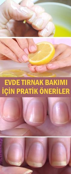 Evde Tırnak Bakımı İçin Öneriler Healthy Nails, Healthy Skin, Before And After Liposuction, Before And After Diet, Natural Antifungal, Nail Conditions, Brittle Nails, Hair Falling Out, Hair Loss Remedies