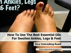 How to use the best Essential Oil for Swollen Ankles, Legs & Feet
