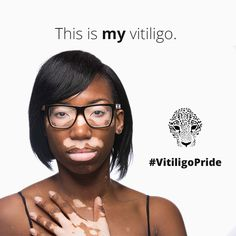 Fast Facts About Vitiligo  http://www.niams.nih.gov/health_info/vitiligo/vitiligo_ff.asp