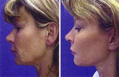 Less Is More Facial Aerobics Exercises And Toning: Do They Work For Both Women And Men?