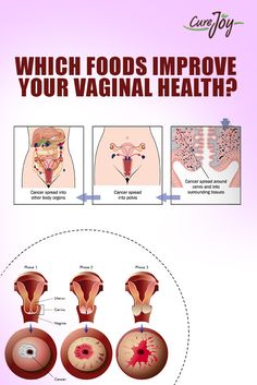 Which foods Improve Your Vaginal Health?