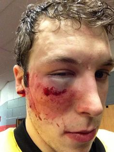 Providence Bruins' Jordan Caron Takes A 90MPH Slapshot To The Face - Holy Shit! And he just had a shoulder injury! :(
