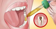 11 All Natural Toothache Remedies Your Dentist Doesn't Want You to Know About | LongevityBox