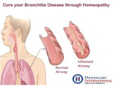 Bronchitis is a long-term disease. It affects the bronchial tubes, that brings air to your lungs. There are two types of bronchitis acute and chronic bronchitis. people with bronchitis having the symptoms like wheezing, chest pain, cough, shortness of breath and more. You can cure your bronchitis through homeopathy treatment by natural approach. It cures bronchitis disease completely with out any side effects at Homeocare International.