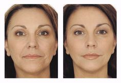 Mesotherapy -  injections for under the eye area that removes fat from the fat cells