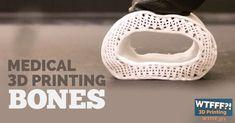 Where medical 3D printing is headed - 3D printing bones.