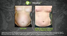 BEFORE & AFTER Questions mommawraps@gmail.com or www.mommawraps.com #mommawraps #beforeafter #nofilter #health #weightloss #skinny #healthy #lookgood #results #nongmo #sahm #momlife #workfromhome #debtfree #ultimatepack #profit #progress