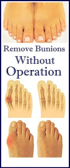Remove Bunions Without Operation