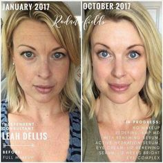 Reduce visible appearance of lines, pores and loss of firmness and get that softer, smoother looking skin with Rodan + Fields REDEFINE Regimen. Find out more. Rodan Fields Skin Care, My Rodan And Fields, Rodan And Fields Redefine, Redefine Regimen, Anti Aging Skin Care, Natural Skin Care, Natural Beauty, Full Makeup, Sensitive Skin Care
