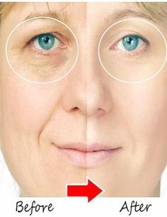Instantly Ageless™ is a powerful anti-wrinkle microcream that works quickly and effectively to diminish the visible signs of aging. The revolutionary ingredient is argireline: a peptide that works lik