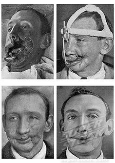Four views of facial reconstruction after a war wound, July 1916…