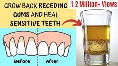 Gum Health, Teeth Health, Healthy Teeth, Health Facts, Dental Health, Oral Health, Dental Care, Reverse Receding Gums, Grow Back Receding Gums