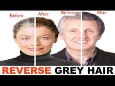 grey hair remedies Your hair can become grey because of several reasons. Here are the top 15 natural home remedies for grey hair treatment with images which are definitely help to you. Grey Hair Treatment, Hair Loss Treatment, Grey Hair Reversal, Grey Hair Remedies, Hair No More, Hair Issues, Hair Repair, Stay Young, Fall Hair