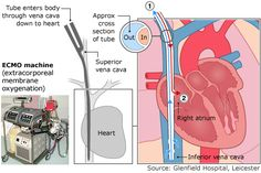ecmo layout very cool