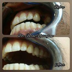 1 implantat mit 1 Metalkeramikkrone