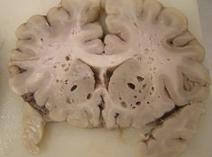 Putrefaction/ decomposition in the brain via Willy Kemp on Twitter