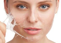 Home Solutions for Peeling Skin is easy to use. you can care your skin any time when you want using these simple steps for Peeling skin care. Acne Rosacea, Salicylic Acid Peel, Hyaluronic Acid, Chemical Skin Peel, Chemisches Peeling, Haut Routine, Pele Natural, Dry Skin On Face, Skin Whitening