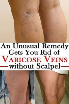 Did you know we can get rid of varicose veins due to the nature, that gives us plants to help remove this problem, without being forced to resort to doctors or other treatments? Find out more in this article.