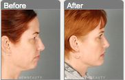 A chin implant can significantly alter a client's profile!