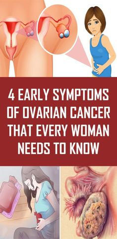 Early symptoms of ovarian cancer that every woman needs to know Ladies, can I ask you something – do you know what's ovarian cancer? Ovarian cancer is a type of cancer that begins in the ovaries. What Is Ovarian Cancer, Ovarian Cancer Symptoms, Liver Disease, Ovarian Cyst, Endometriosis, Health And Nutrition, Health Tips, Health Care, Health And Fitness