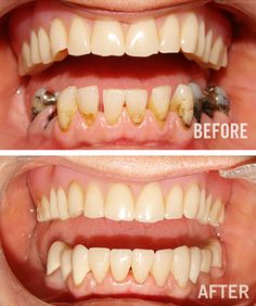 Now YOU can too have that beautiful smile that you have always wanted. We can help you achieve that Smiles of your Dream!! for more information you can visit your website http://www.dentalimplantsclinicindia.com/..