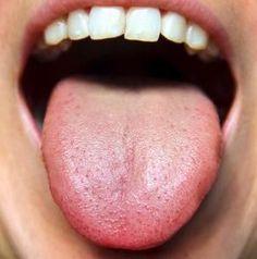 Tongue Diagnosis Made Easy 2