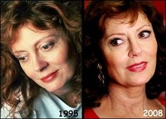 Did Susan Sarandon Have Plastic Surgery - All Information About Plastic Eyelid Lift, Sun Damaged Skin, Bruce Jenner, Celebrities Then And Now, Susan Sarandon, Tough Girl, Olivia Newton John, Clint Eastwood, Outfits