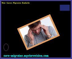 What Causes Migraine Headache 120727 - Cure Migraine