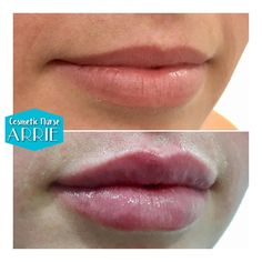 . ~ M W A H ~ . Define ⚖️ Correct Plump . 1ml premium dermal filler was used to crisp up the Cupid's bow, correct a slight asymmetry and plump up these naturally beautiful lips. . After photo taken immediately post treatment *some redness & swelling present. . { in clinic @bramisperth} . For bookings contact @bramisperth 9388 2697 . #bramisbabe #lipsbyarrie #dermalfillers #lipfillers #cosmeticnursearrie #perthcosmeticnurse