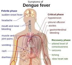 It includes the pain in muscle as well as joints along with a severe head ache. These features are sudden in onset. One can also see fever along with a rash. The rash is bright red in color and is present on the limbs as well as chest. It may be present all over the body in few cases. The other...