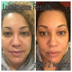 dark skin before after photos Very satisfied person usung luminesce product line http://www.rosiepolicastro.jeunesseglobal.com/products_all.aspx