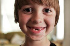 losing both my front teeth