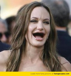 20 Best Celebrity Without Teeth