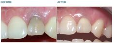 Dental Whitening - Case 3 Sometimes only one tooth needs whitening. The most common cause for this being if the tooth had Root Canal Therapy. Here the whitening agent is applied by the dentist to the inside of the dark tooth. The treatment is completely painless as there is no nerve left inside the tooth after the Root Canal Treatment. BEFORE: This lady had Root Canal Therapy carried out a few years ago. Since that time she has noticed the tooth getting darker and she asked what could be…
