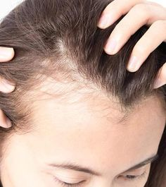 Natural Remedies For Hair Growth Top 10 Home Remedies To Cure Baldness Effectively - Bad lifestyle choices, including lack of proper nutrition Home Remedies For Baldness, Hair Remedies For Growth, Hair Loss Remedies, Natural Remedies, Excessive Hair Loss, Hair Growth Cycle, Hair System, Hair Falling Out, Natural Home Remedies