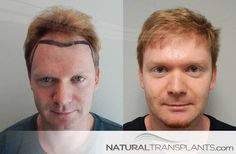 Cost of Hair Restoration | Hair Transplant Before and After