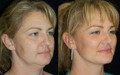 How to get rid of face fat