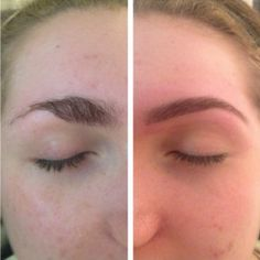 HD Eyebrows before and after