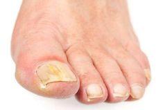 Μύκητες των νυχιών. Θεραπεία με φυσικές μεθόδους Fingernail Fungus, Fungal Nail Infection, Best Toenail Fungus Treatment, Toenail Fungus Remedies, Nail Treatment, Toenail Fungus Medication, Foot Detox, Home Remedies