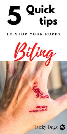 5 Quick Tips to Stop your Puppy Biting - Lucky Dogs - Luxury Boarding & Dog Owner Tips Puppy Training Tips, Brain Training, Training Your Puppy, Training Classes, Potty Training, Toilet Training, Agility Training, Training Videos, Dog Agility