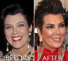 Kris Jenner before and after plastic surgery - plastic surgery fails Kris Jenner Plastic Surgery, Kardashian Plastic Surgery, Botched Plastic Surgery, Plastic Surgery Before After, Botox Before And After, Celebrities Before And After, Celebrities Then And Now, Beautiful Celebrities, Kardashians Before And After