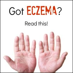 FACT: Nutrient-dense, real food can cure eczema by healing your body from the inside out.