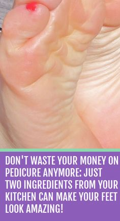 Don't Waste Your Money on Pedicure Anymore: Just Two Ingredients from Your Kitchen Can Make Your Feet Look Amazing! Don't Waste Your Money on Pedicure Anymore: Just Two Ingredients from Your Kitchen Can Make Your Feet Look Amazing! Home Health Remedies, Natural Health Remedies, Natural Cures, Herbal Remedies, Natural Beauty, Natural Healing, Scar Remedies, Natural Treatments, Autogenic Training