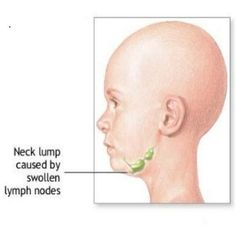 Top Facts About Swollen Lymph Nodes In Children