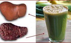 Remédios Caseiros para Doença Hepática Gordurosa (Fígado Gordo)