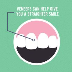 """CROOKED TEETH? Veneers are a great option to help give you a straighter looking smile!"""""""