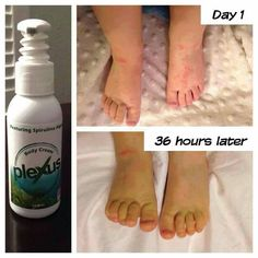 Do you or someone you know struggle with red, itchy, patchy, scaly skin? Look how this person using our Plexus Probio5 and our body cream worked for them!! It might be a life saver for you!  Message me and I'll answer any questions you have.  www.plexusslim.com/sarawalker