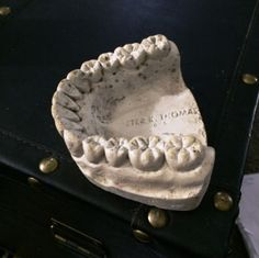 Lower jaw cast of an unknown patient. Marked as coming from Peter K Thomas DDS, innovative clinical dentist and dentist to the stars from the 1960s.
